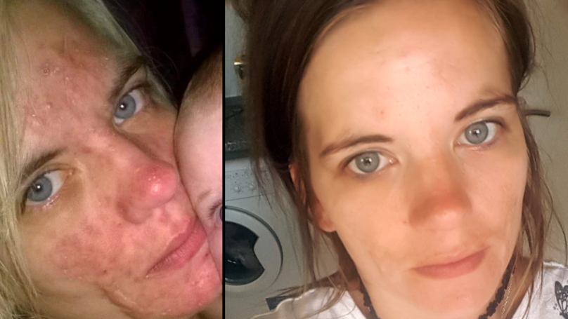 Woman Says £3 'Miracle Cream' Completely Cleared Up Her Acne