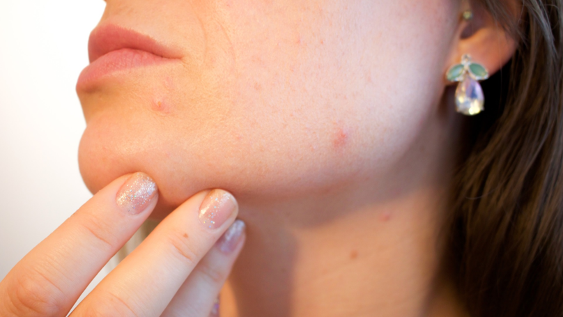 Scientists Say A Cure For Acne Could Be On The Horizon