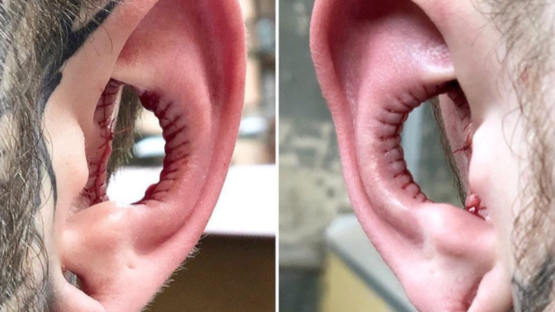 Man Has Inside Of His Ears Taken Out In New Body Modification Trend
