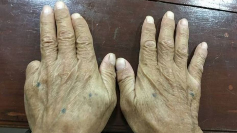 Why Yakuza Members Chop Off Their Pinky Fingers