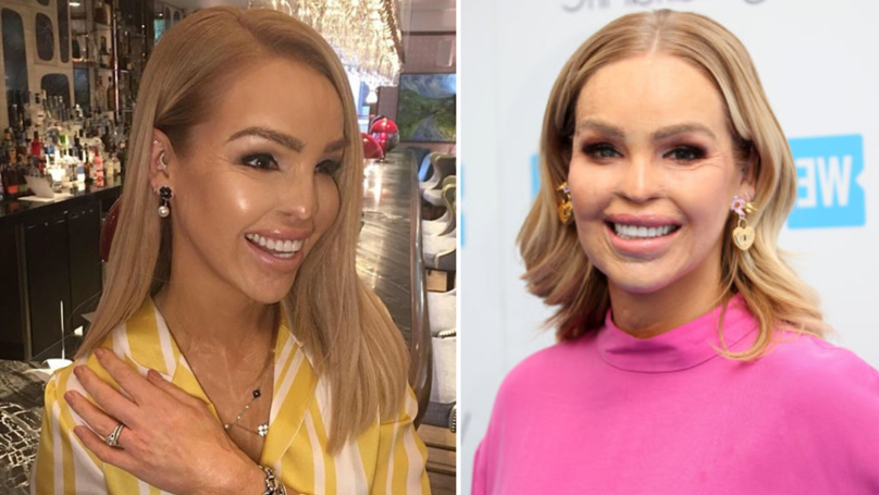 Katie Piper's Acid Attacker Could Be Released In A Couple Of Weeks