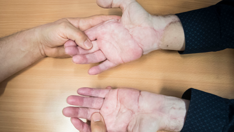 Man Can Use His Hands Again After First Successful Double Transplant Surgery