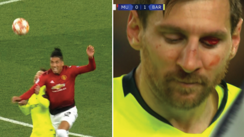 Chris Smalling Cleans Out Lionel Messi, Leaving Him Full Of Blood