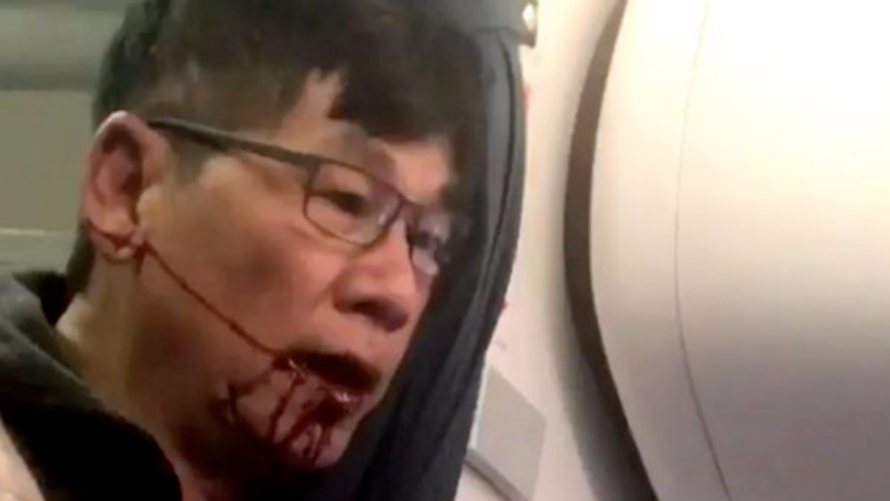 Doctor Dragged Off United Airlines Flight Reveals His Injuries After Settlement