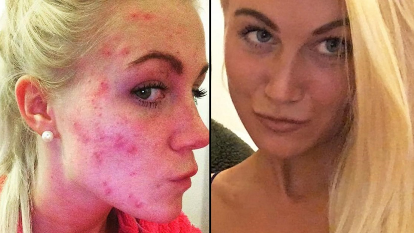 Woman Bullied Because Of Her Severe Acne Finds Cheap 'Cure'