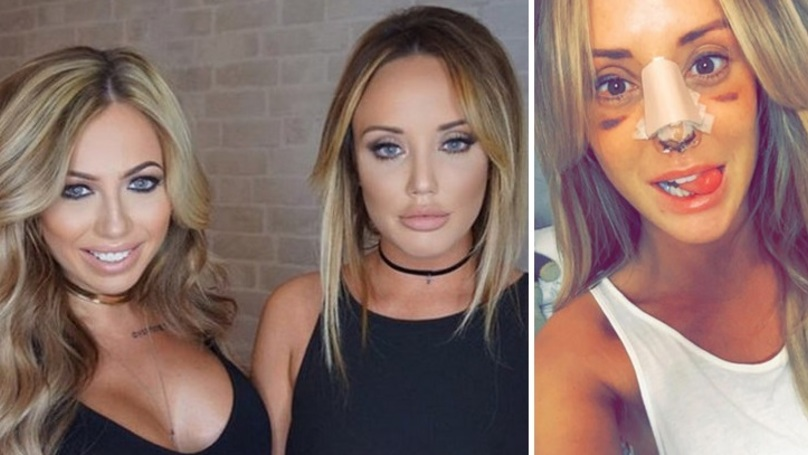This Is How Much The Geordie Shore Girls Spent On Cosmetic Treatments Before The New Series
