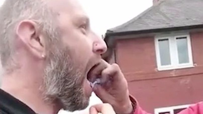 LADs Try Absolutely Everything To Help Pull Out Their Mate's Tooth