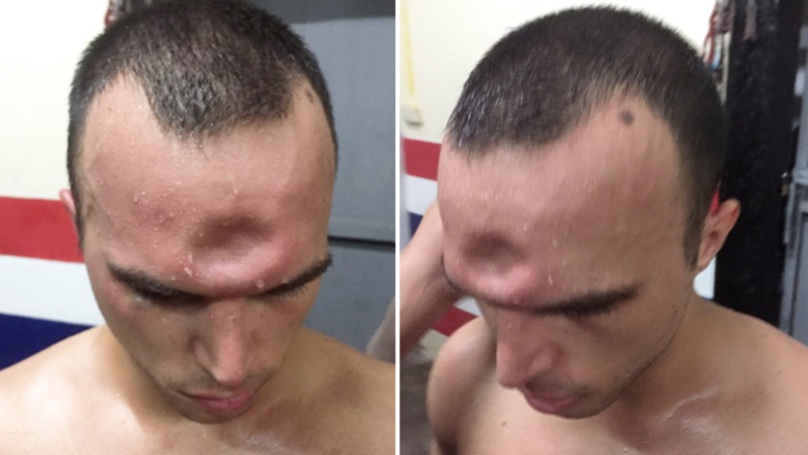 Muay Thai Boxer Suffers Horrific Injury After Elbow To The Skull