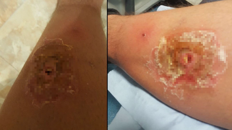 Man Left With Hole In His Leg After Britain's Most Venomous Spider Bit Him