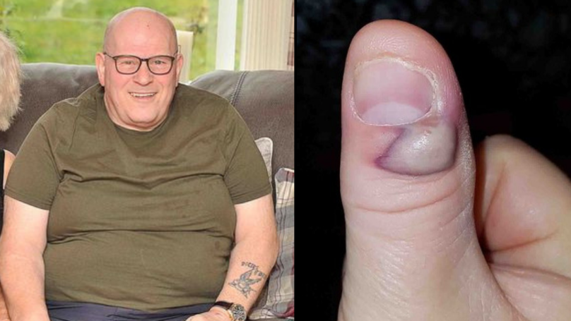 Grandfather Was Left Fighting For His Life After 'Developing Sepsis From Biting Nails'