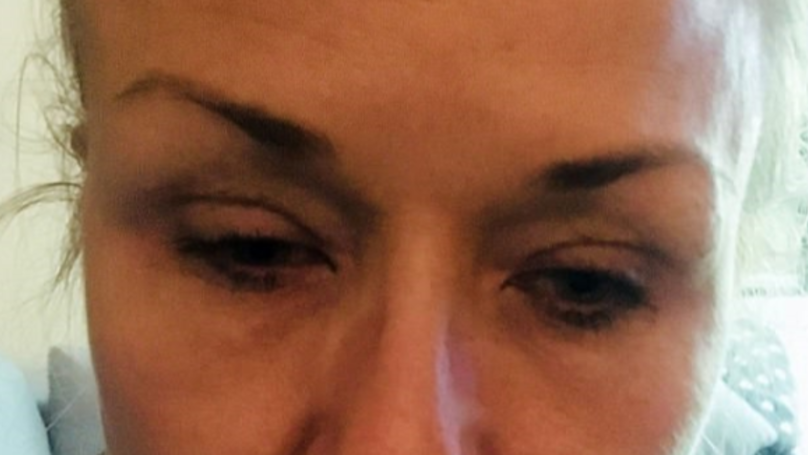 Woman Makes Grim Discovery After Not Taking Mascara Off Properly In 25 Years