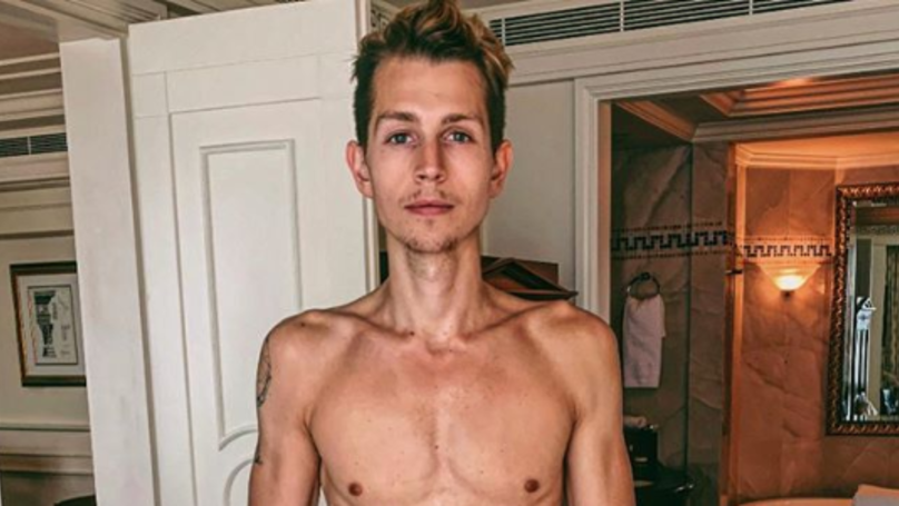 James McVey Says He'll Confront Relationship With Food Following I'm A Celebrity