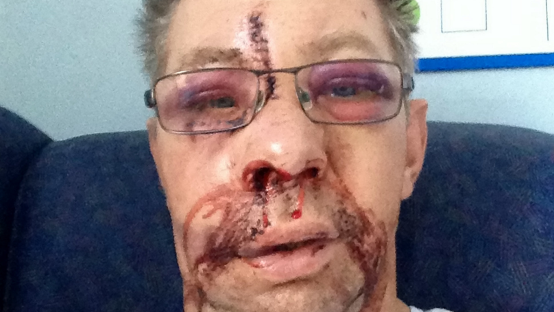 Surfer Needed Dramatic Face Lift After Brutal Face Plant
