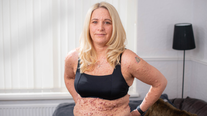 Mum With Rare Skin Condition Finally Finds Confidence To Wear A Bikini In Public