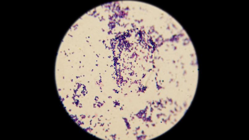 Man Returns From South East Asia with Antibiotic Resistant 'Super Gonorrhoea'