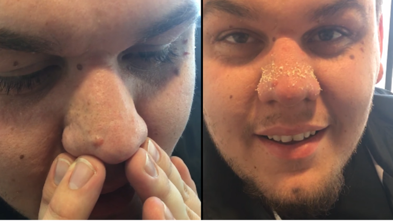 this man s blackhead removal technique is a complete and utter gamechanger ladbible. Black Bedroom Furniture Sets. Home Design Ideas