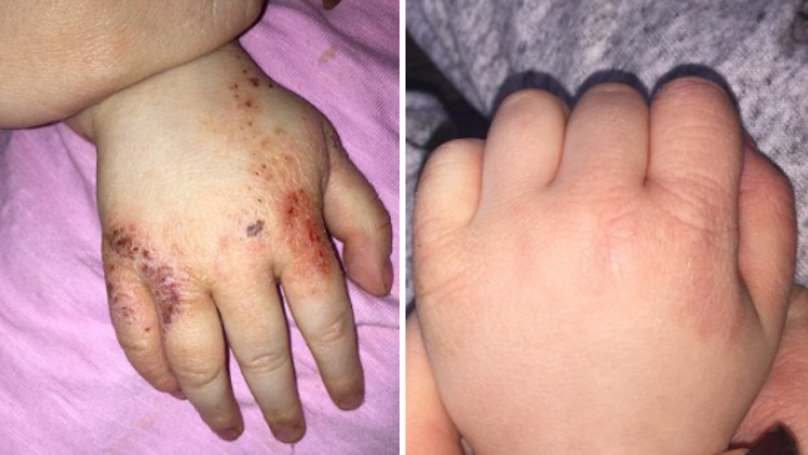 People Can't Believe How Effective This £3.99 'Miracle' Eczema Cream Is