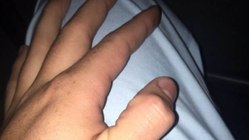 People Are Breaking Their Thumbs In New Inexplicable Internet 'Craze'