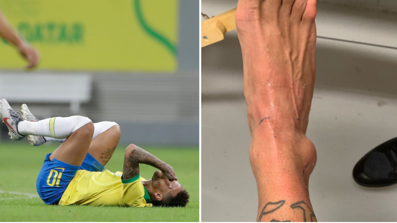 Neymar Shares Picture Of Swollen Ankle Ruling Him Out Of Copa America