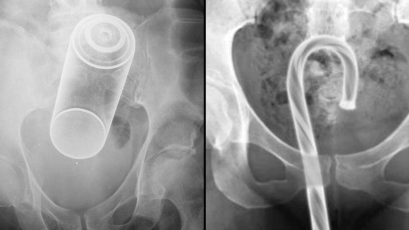 Bizarre Objects Stuck In People's Orifices That Required Visits To ER Revealed