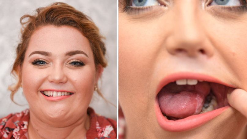 Mum Has Tongue Rebuilt With Muscle After Cancerous Mouth Ulcer