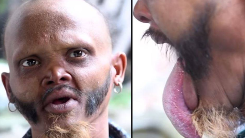 Man Shows Off Bizarre Ability To Lick His Own Forehead
