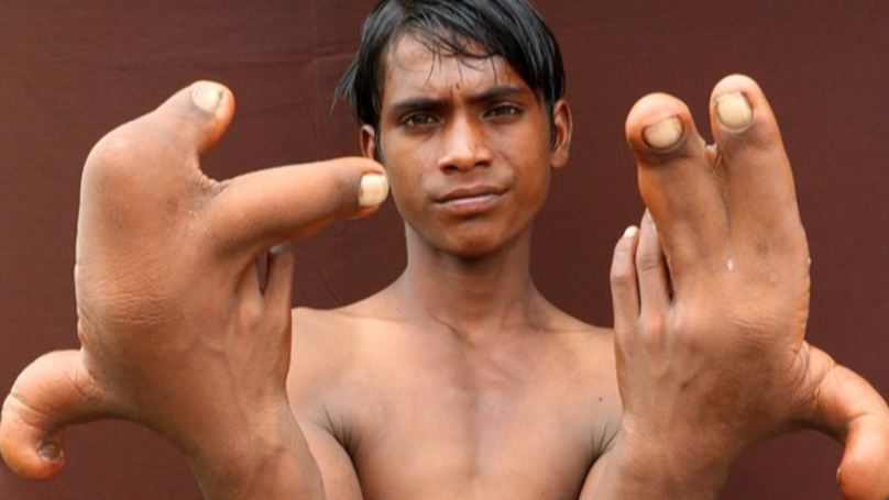 Doctors Are Baffled By This Indian Boy's Enormously Large Hands