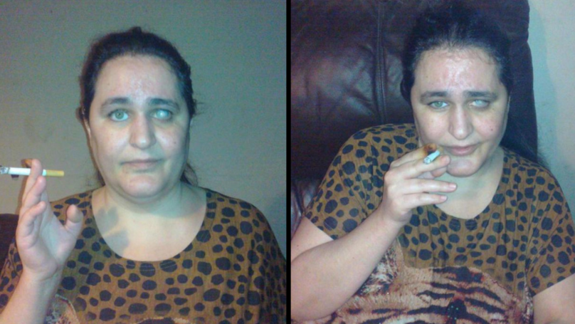 Woman Addicted To Cigarette Butts Eats Eight Every Night Due To Rare Condition