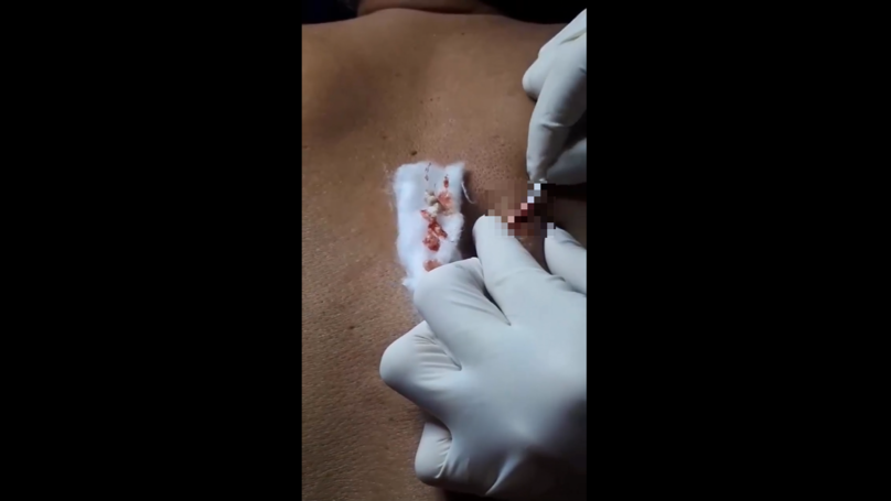 10-Year-Old Pimple Removed From Man's Back