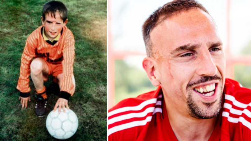 Franck ribery reveals the heartbreaking story behind his facial franck ribery reveals the heartbreaking story behind his facial scars voltagebd Gallery