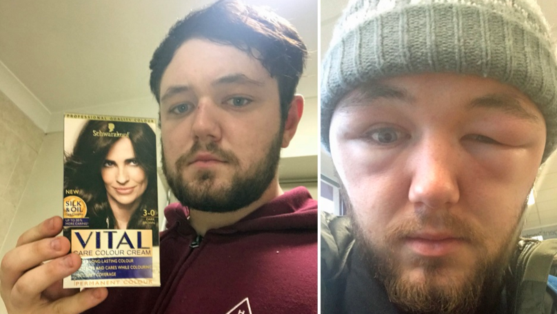 Man's Face Dramatically Swells After Hair Dye Treatment Goes Horribly Wrong