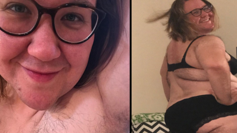 Brave ​PCOS Sufferer Decides To Ditch The Razor And Embrace Her Hairiness