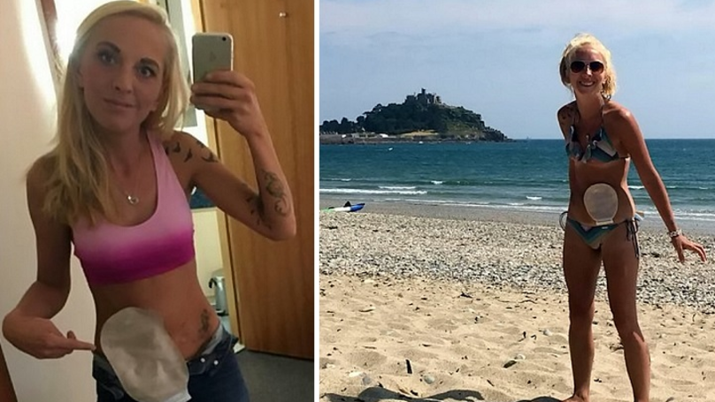 Woman With Stoma Goes On Mission To Prove Colostomy Bags Don't Smell