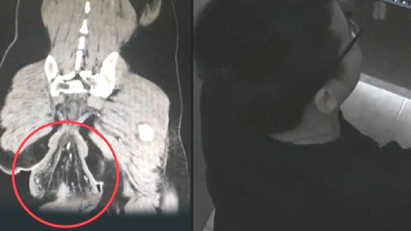 Man's Rectum Falls Out While He's Sat On The Toilet
