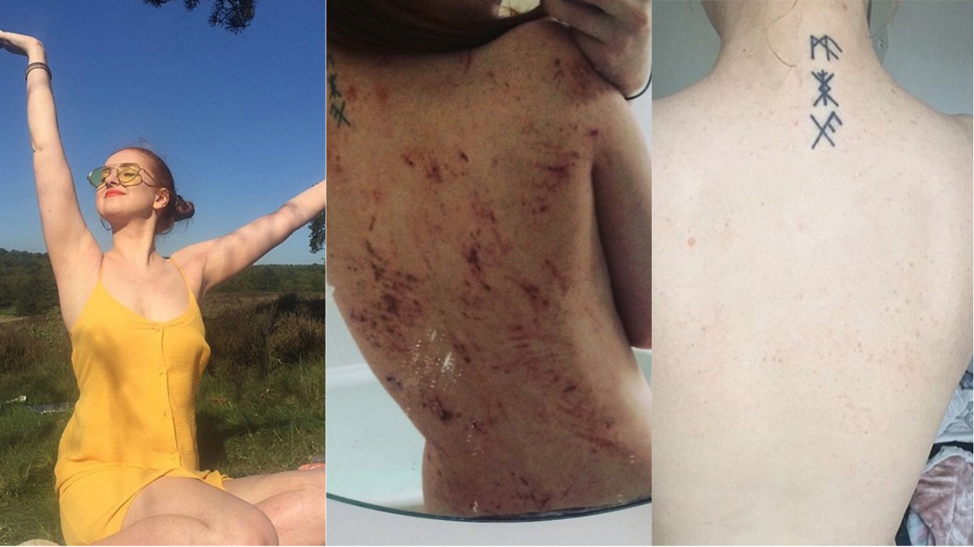 ​Going Vegan Leaves Woman Completely Eczema Free