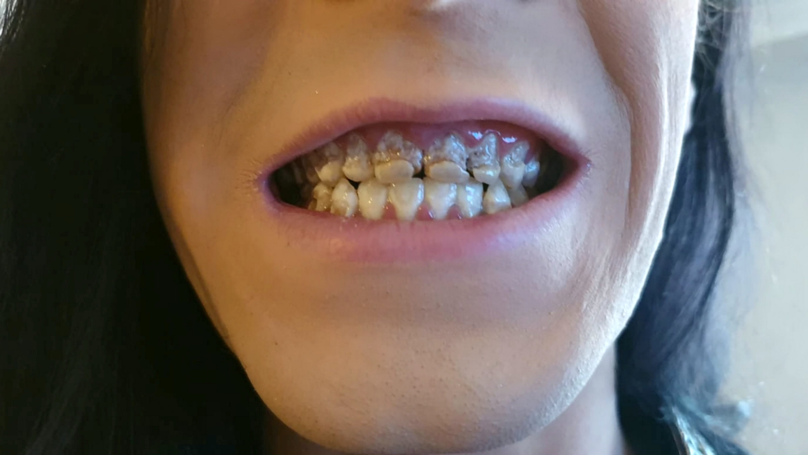 Vinnie Pyner's teeth decayed from drinking energy drinks. Credit: SWNS