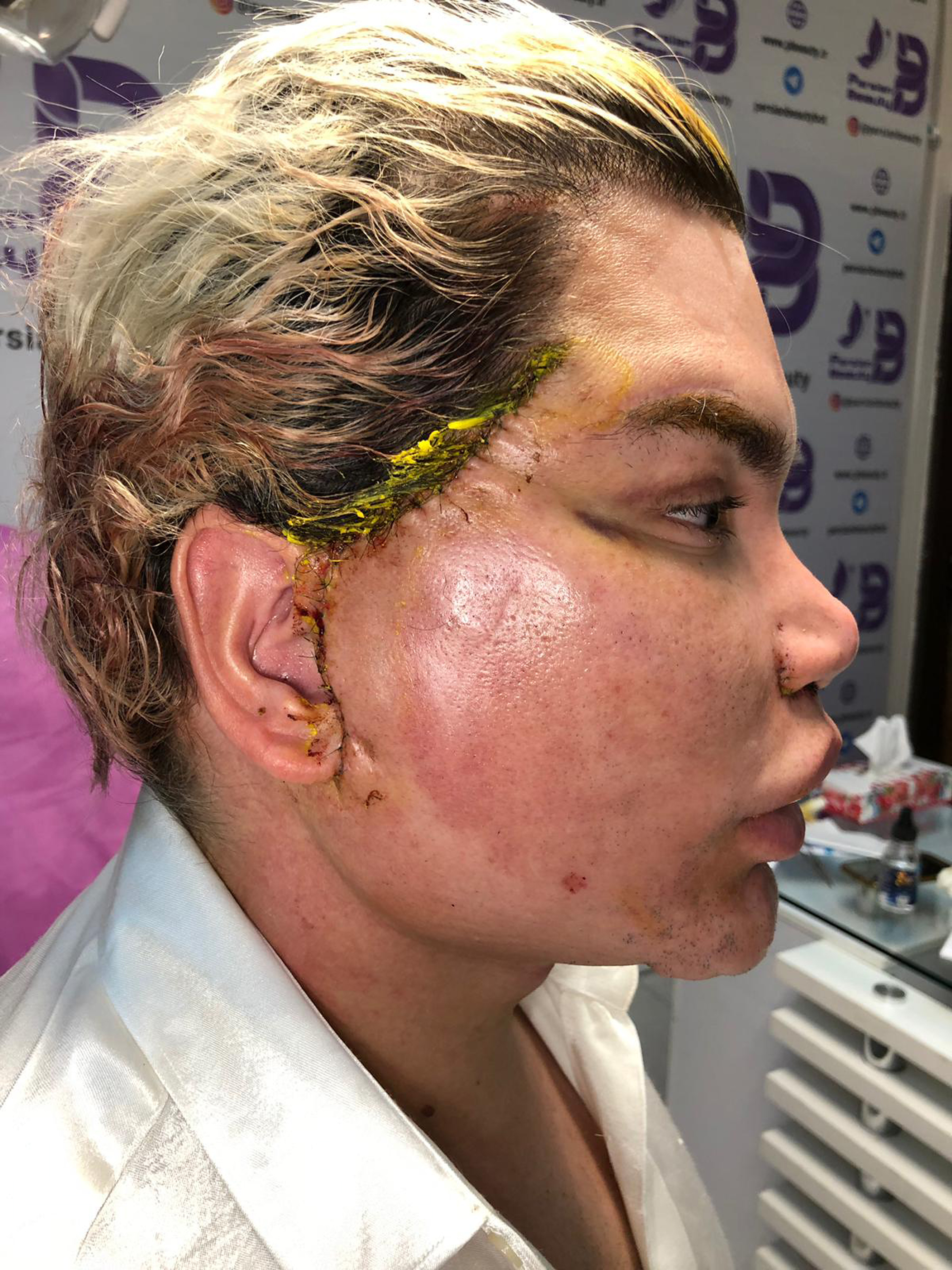 Human Ken Doll Rodrigo Alves Warns People About Facial