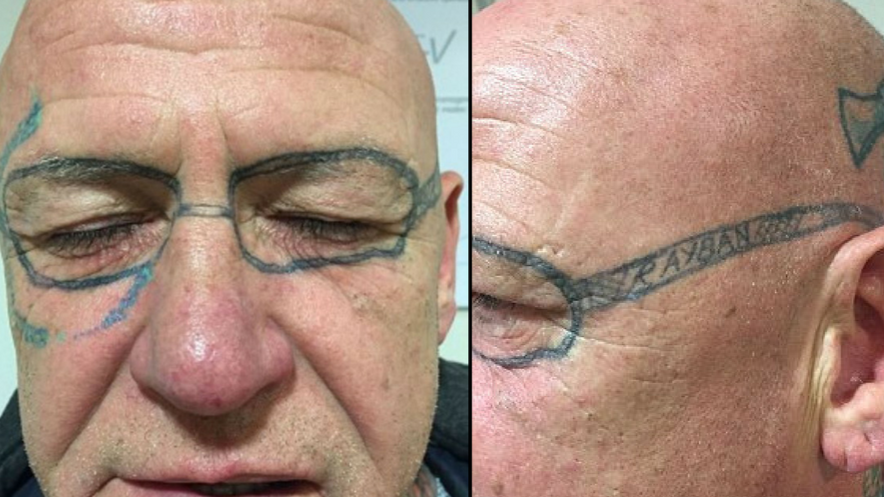 Stag Do Reveller Spends Two Years Removing Glasses Tattooed On His Face