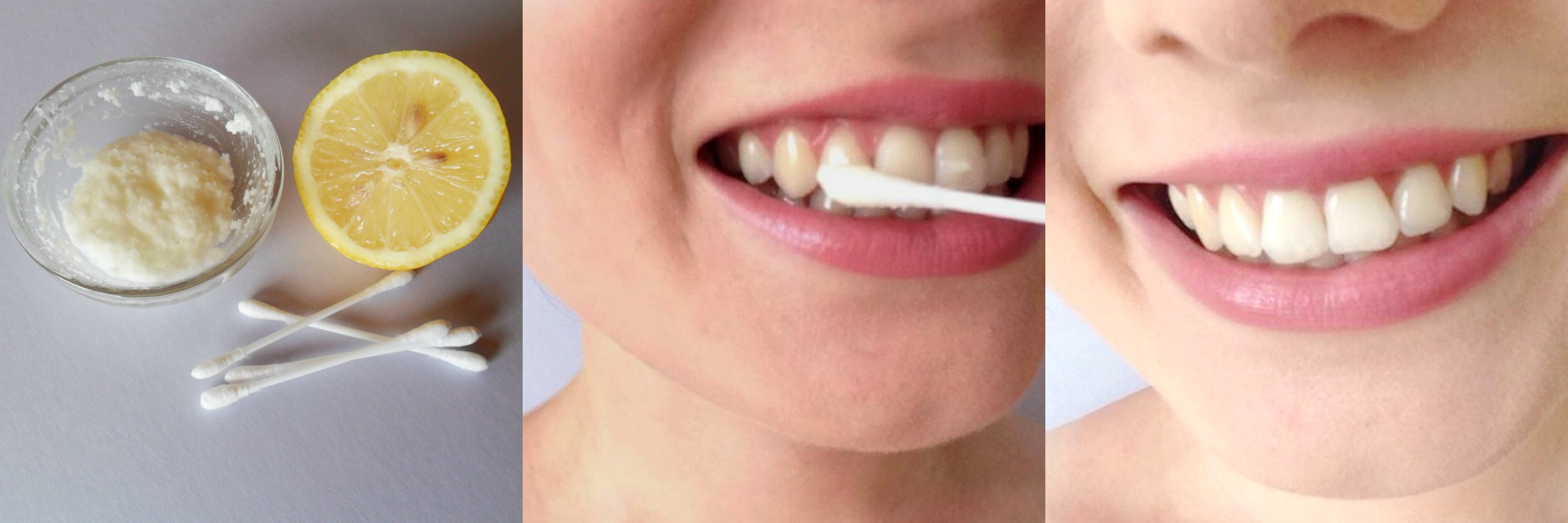4 Diy Hacks To Naturally Make Your Teeth Brighter Than They Ve Ever