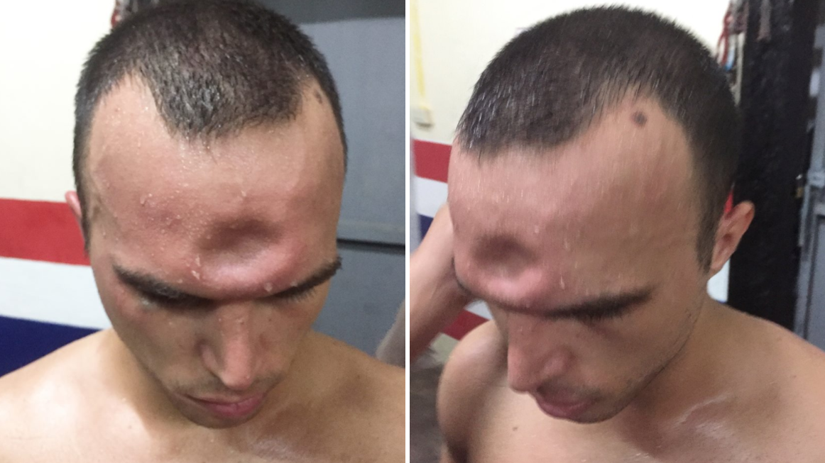 Muay Thai Boxer Suffers Horrific Injury After Brutal Elbow To The Skull