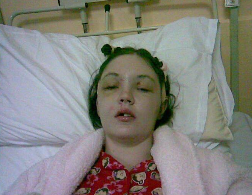 Gráinne Kealy underwent a gruelling 10-and-a-half hour surgery after the smash. Credit: Gráinne Kealy