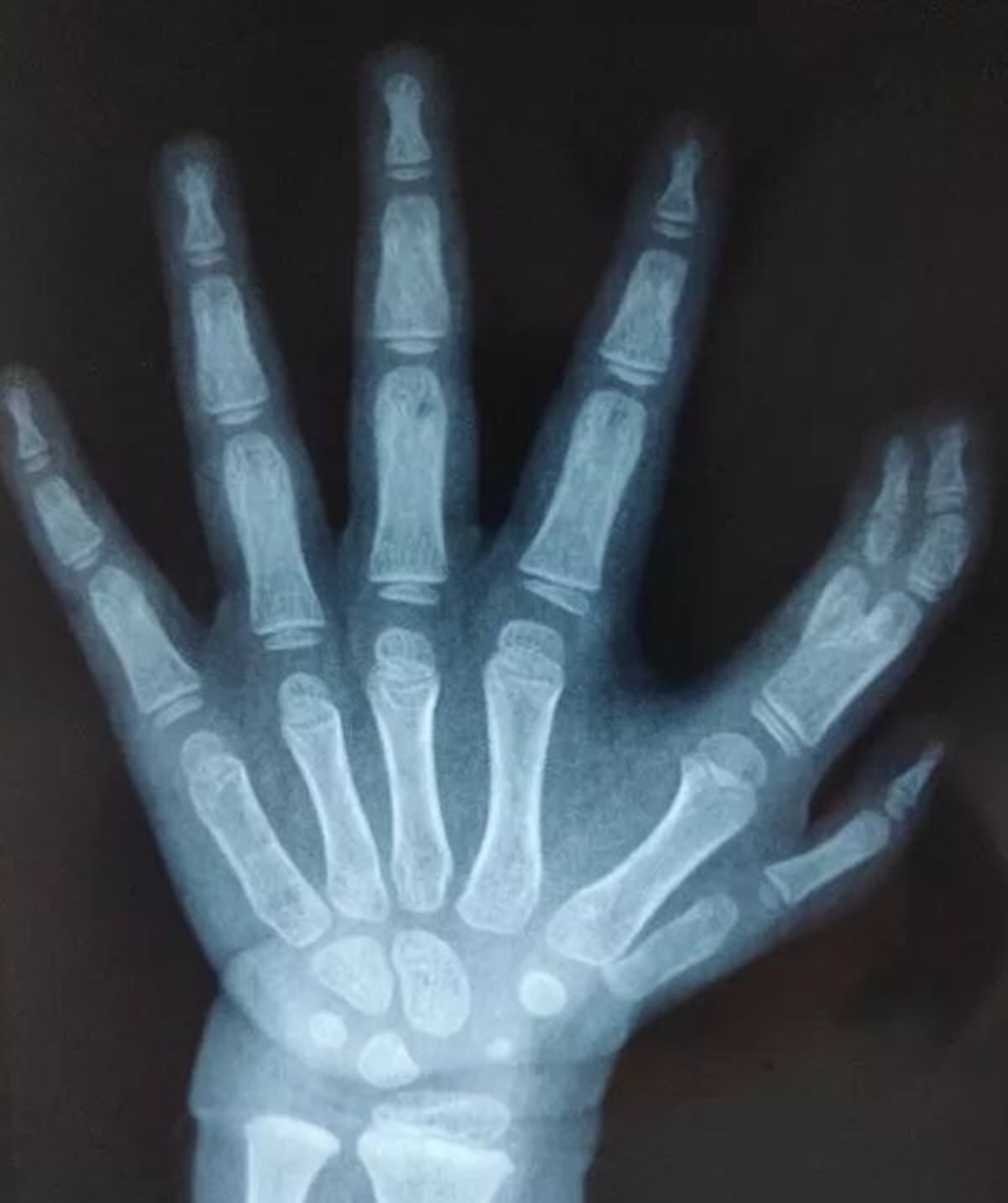 Doctors expect the girl's fingers to develop normally. Credit: Asiawire