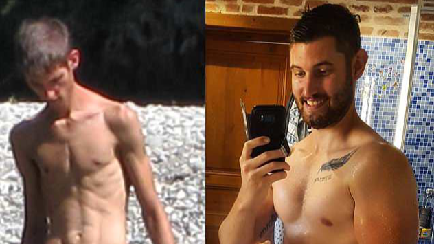 Anorexic Bodybuilder Beats His Demons After Finding Love