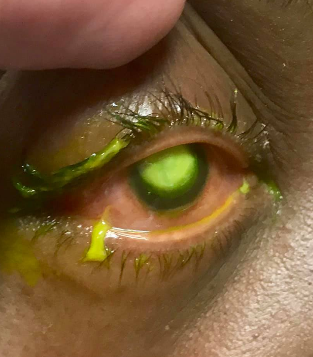 The patient slept in contact lenses and was struck by a nasty infection. Credit: Vita Eye Clinic