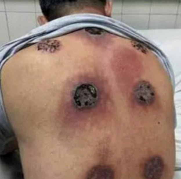What Are Cupping Marks: Chinese Man Left With Huge Holes In His Back After Cupping