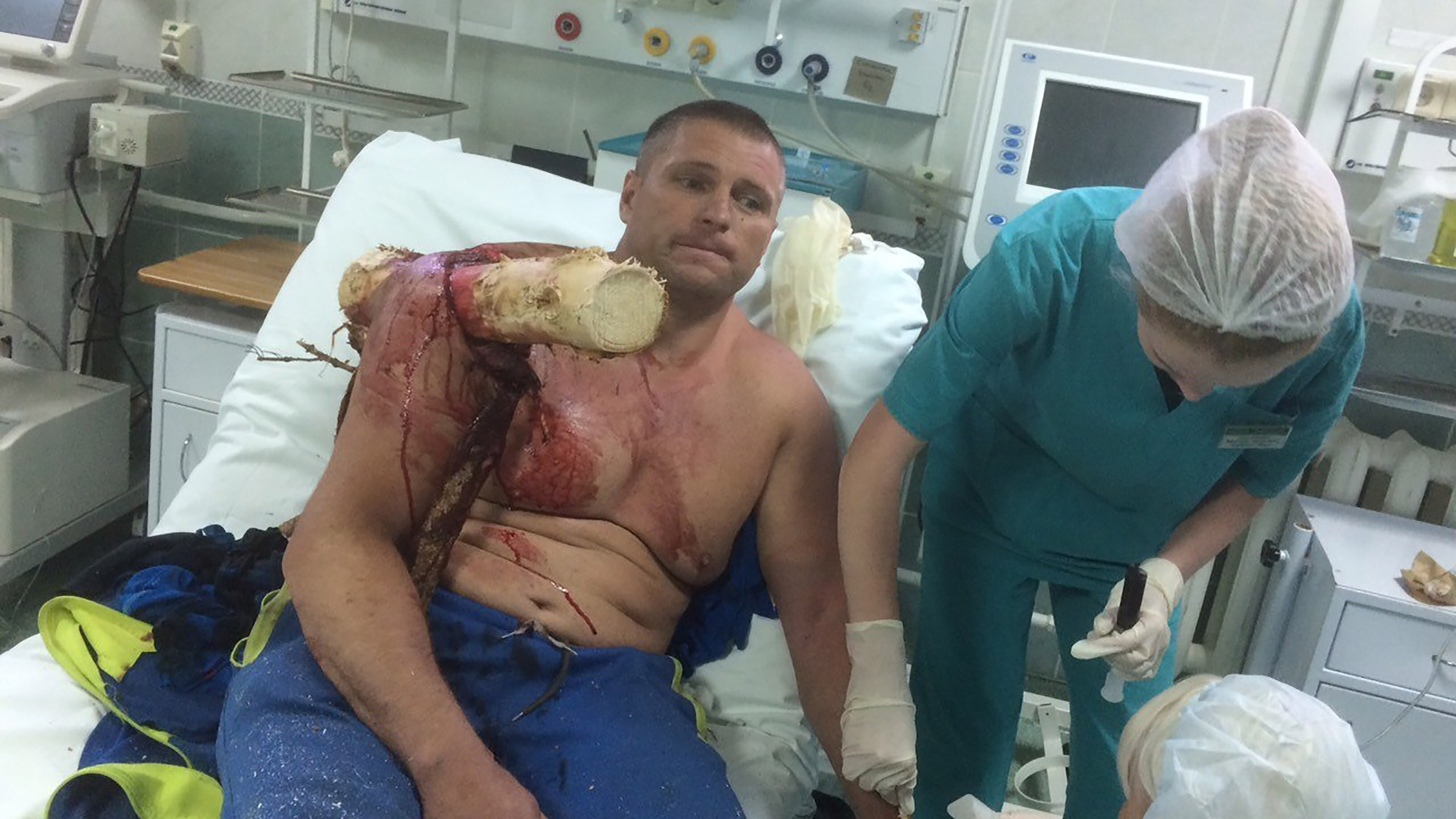 Crashed Microlight Pilot Gets Impaled Through Shoulder By Tree