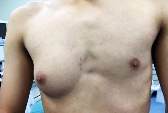 Guy develops A-cup breast