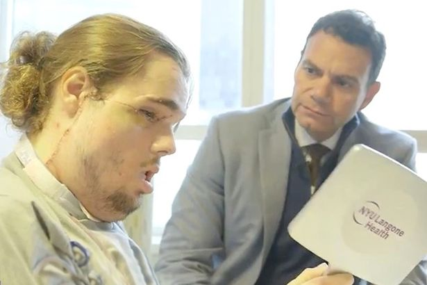 Man's amazing transformation after marathon face transplant operation