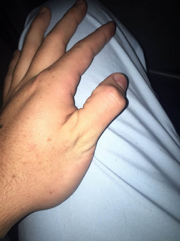 Picture of thumb