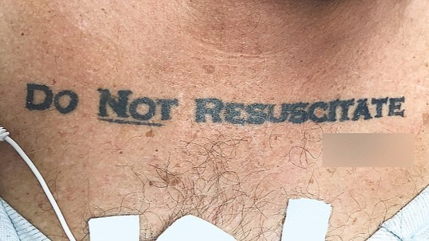Doctors Stumped By 'Do Not Resuscitate' Tattoo On Unconscious Man Brought To Hospital